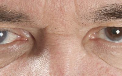 Cataract Surgery In Singapore: What's the Cost and Is It Necessary?