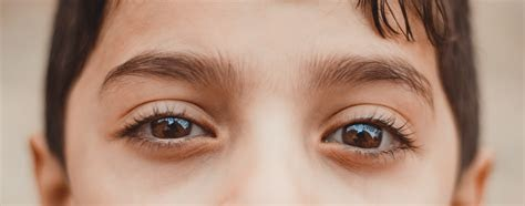 Lazy Eye: How to Fix It