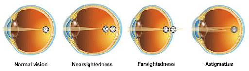 Refractive errors can lead to lazy eye if left untreated.