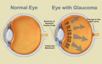 Glaucoma: Causes, Types and How We Can Help